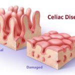 Celiakia część 2. Rodzaje Celiakii.