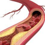 Homocysteina
