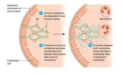 Kompleksy immunologiczne