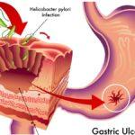 Wrzody żołądka i dwunastnicy – zalecenia dietetyczne